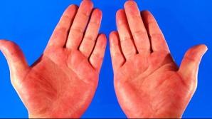 """Aceste boli se """"citesc"""" în palmă. La ce trebuie să fii atent"""
