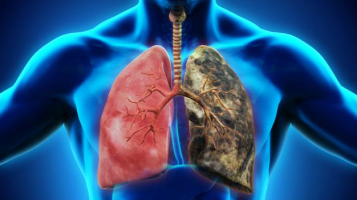 Cum te poţi îmbolnăvi de cancer pulmonar fără să fumezi. Ucigaşul tăcut din casa ta