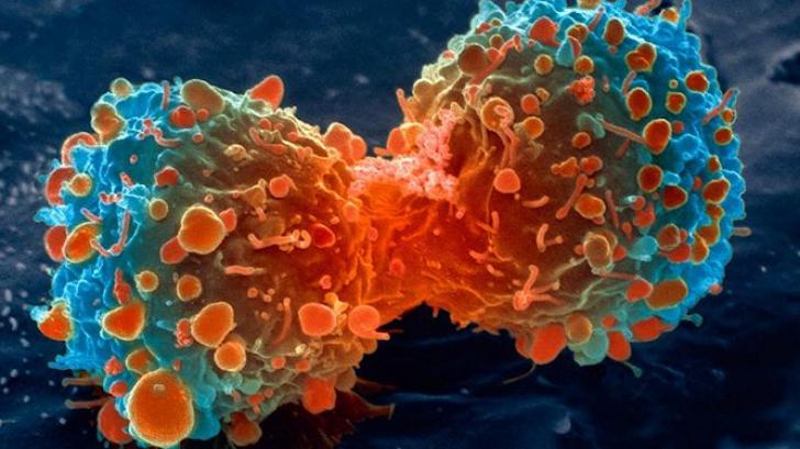 <p>Tratament experimental împotriva cancerului</p>
