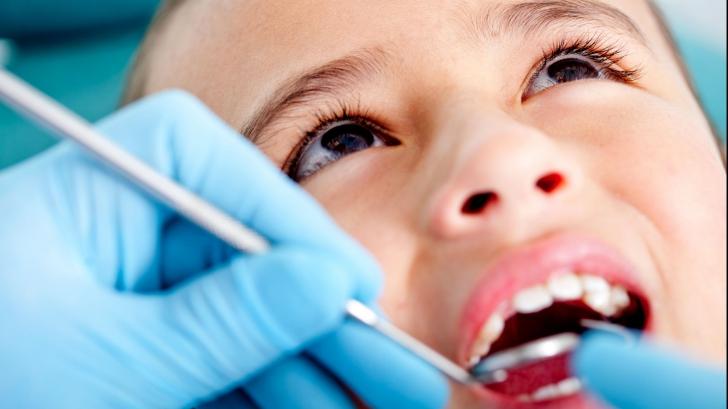 Consultanţii stomatologice gratuite pentru copii. Ce tratamente vor mai fi decontate de stat