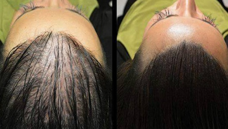 Reţeta magică pentru creşterea rapidă şi naturală a părului. Rezultate sunt surprinzătoare!