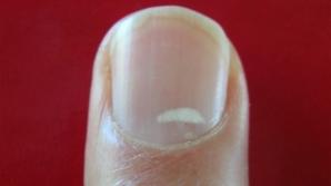 Dacă observi aceste pete albe pe unghii, mergi urgent la medic! Indică o problemă gravă de sănătate