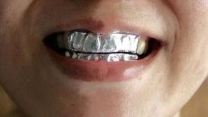 Şi-a pus folie de aluminiu pe dinţi şi a stat aşa timp de o oră, în fiecare zi. Efectul este magic