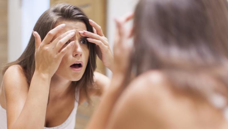 Cum scapi de acnee cu masca de cartofi. Rezultatele apar imediat!