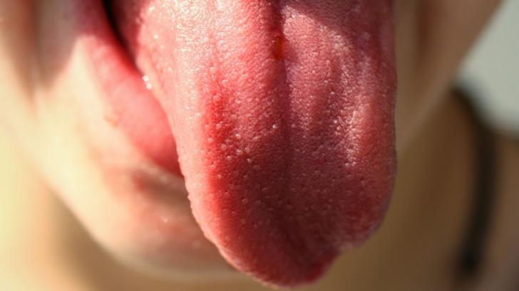 Ce dezvăluie limba despre sănătatea ta
