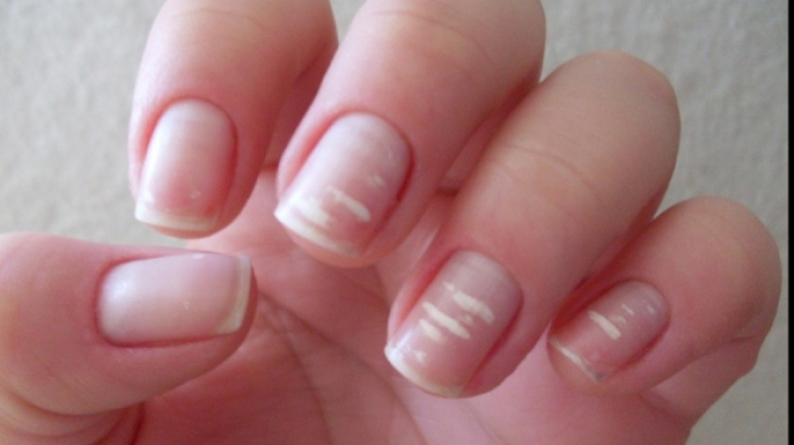 Ai observat aceste pete pe unghii? Nu le ignora. Sunt un motiv real de îngrijorare