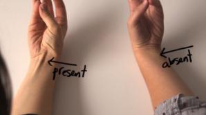 Cu braţul întins, uneşte-ţi degetul mare cu cel mic. Ce înseamă dacă apare o proeminenţă