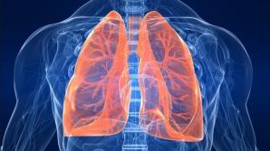 Primele simptome ale cancerului de plămâni. Mergi de urgenţă la medici!