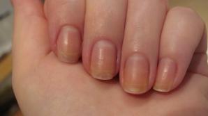 Tratamente naturiste pentru unghiile îngălbenite. Efectele se văd imediat