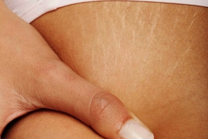 7 remedii naturale anti-vergeturi, cu efect garantat