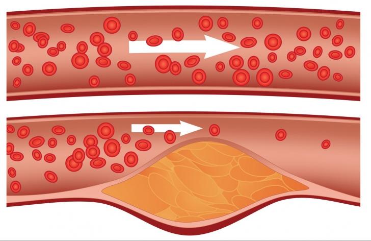 Remediu german străvechi care scade colesterolul