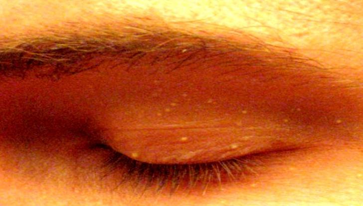 Ai aceste semne pe piele? De ce boală poți suferi