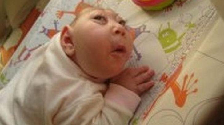 A băut, a fumat tot timpul sarcinii. Cum arată copilul la naştere: medicii au intrat în stare de ŞOC