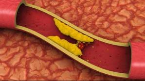 Nimeni nu ne spune acest lucru: Ce ţi se poate întâmpla dacă ai colesterolul prea mic?