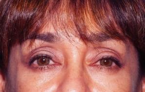 Acest defect al ochilor poate fi un simptom al cancerului la plămâni