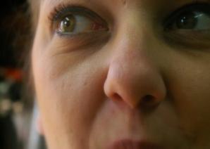 Ce spune pielea feţei despre sănătatea ta