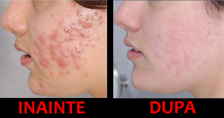 Scapă de coșuri cu acest tratament anti-acnee