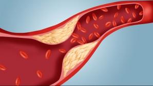 Adevărul de colesterol pe care nimeni nu îl spune. Sigur nu ştiai acest lucruri