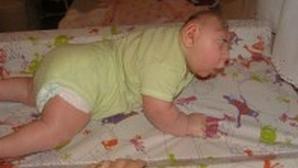 Înfiorător! Cum arată copilul născut de o femeie care a băut, fumat şi drogat pe durata sarcinii