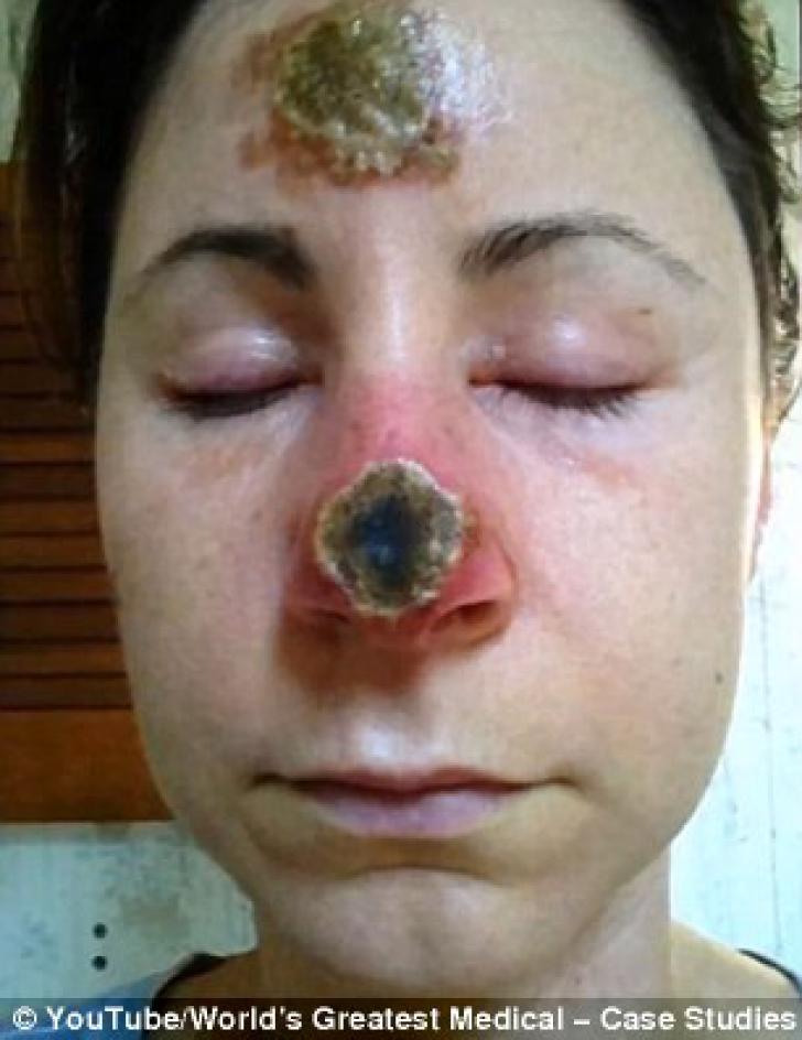 A folosit un remediu natural pentru a scăpa de cancerul de piele. Rezultatele sunt îngrozitoare