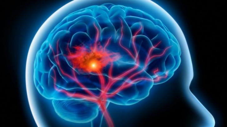 Testul care îţi arată dacă eşti predispus la accident vascular cerebral