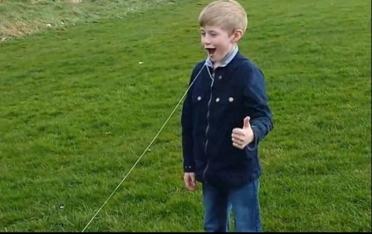Un bărbat a folosit elicopterul pentru a-i scoate dintele fiului său. Imaginile sunt virale