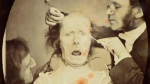 Ultimul experiment al lui Darwin: Fotografii tulburătoare din secolul XIX