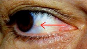 Ai aşa ceva la ochi? Iată ce probleme GRAVE de sănătate indică această pată
