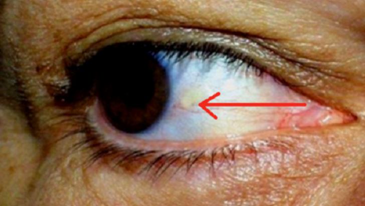 Ai asta la ochi? Ce probleme grave de sanatate indica acest simptom