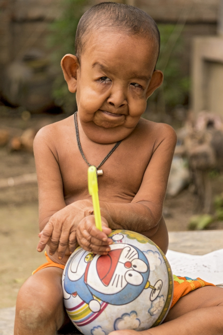 Un băiețel de 4 ani arată ca un pensionar de 80 de ani. Îi plângi de milă când îl vezi!