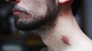 Un tânăr a murit după ce iubita l-a sărutat pe gât! Ce au descoperit medicii