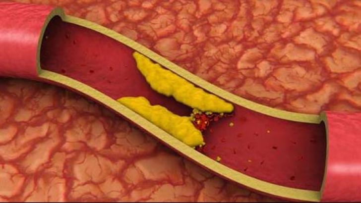 Ce este colesterolul HDL şi cum ne protejează de bolule de inimă?