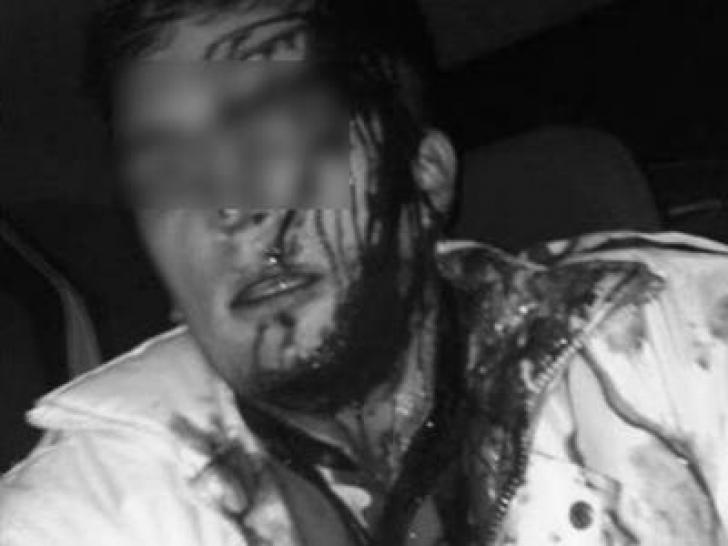Poliţist din Eforie bătut de două ori într-o seară de acelaşi bărbat. Scandalagiul, reţinut