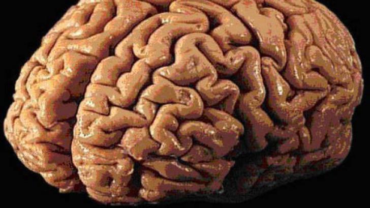 Creierul unui celebru cântăreţ, analizat de oamenii de ştiinţă. Ce au descoperit!