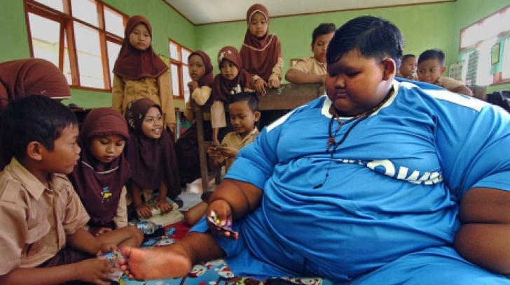 Cel mai gras copil din lume a slăbit. Câte kilograme are acum băiatul de 10 ani