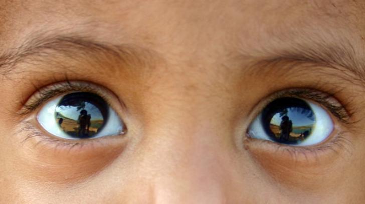 Cercetătorii au descoperit o nouă mişcare a ochiului uman. Este incredibil cum afectează vederea