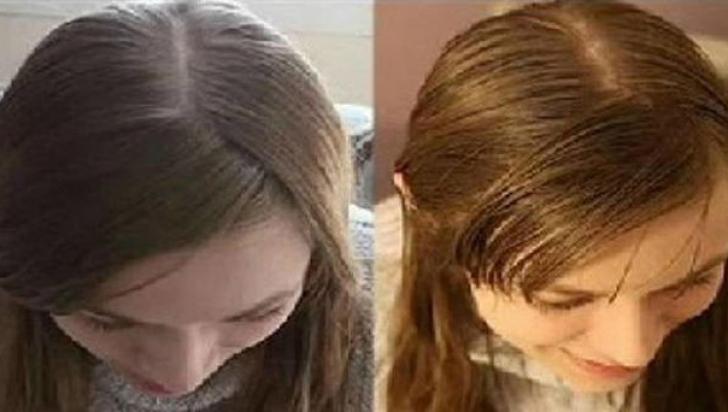 Nu s-a spălat pe cap timp de 30 de zile. A rămas surprinsă. Iată cum arată parul ei!