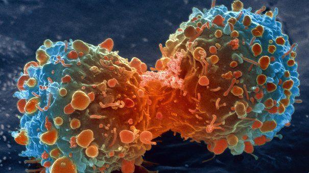 Vindeca cancerul in 40 de zile