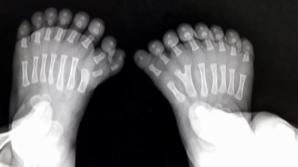 Un bebeluş s-a născut cu 31 de degete! Terifiaţi, medicii au luat o DECIZIE înfiorătoare