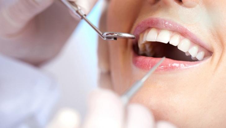 Albirea dinţilor acasă, în doar 3 minute! Cum se face