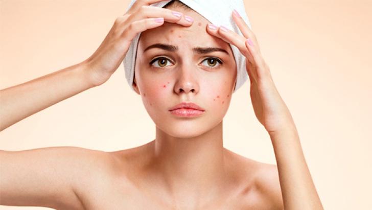 Scapă definitiv de acnee cu aceste tratamente naturiste