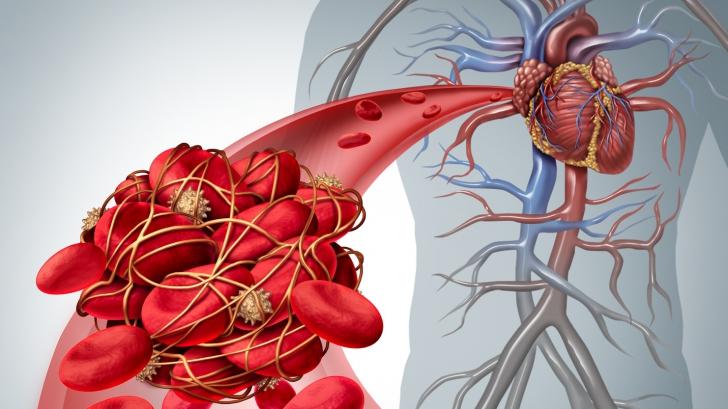 Semne că ai un cheag de sânge care a ajuns la inimă sau la creier. Mergi de urgență la medic!