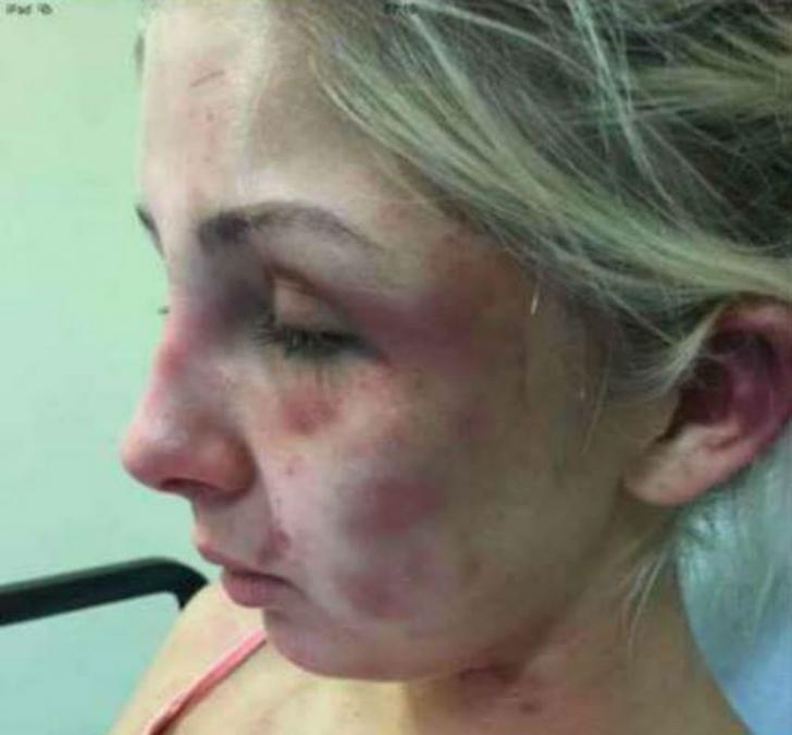 I-a cerut iubitei să îi aducă o ţigară şi ea a refuzat. Rezultatul: bărbatul a bătut-o timp de 4 ore