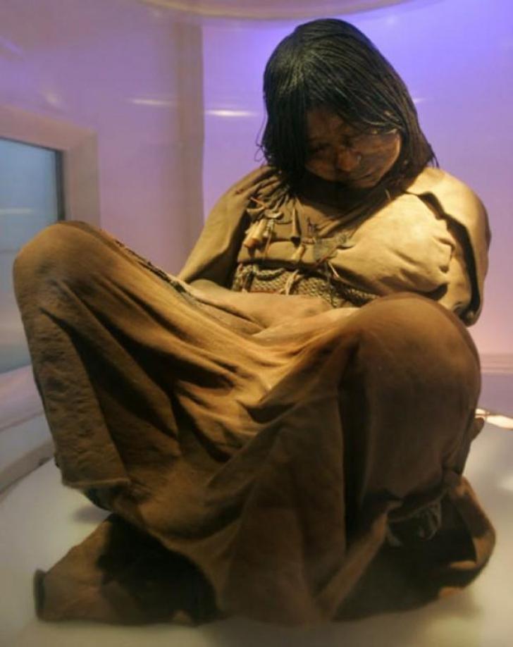 mumie în lupta împotriva varicozei)