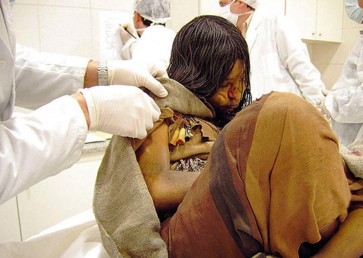 mumie în lupta împotriva varicozei