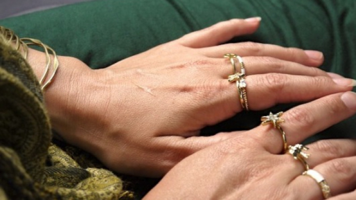 Şi tu porţi bijuterii de aur? Boala curată pentru trei organe vitale