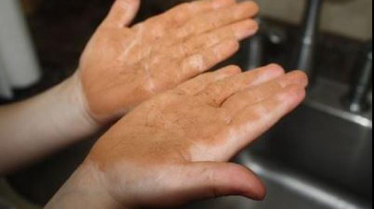 """Tot ce trebuie să ştii despre """"boala mâinilor murdare"""""""