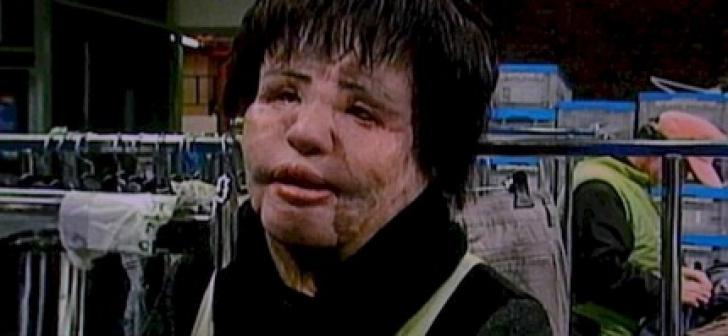 <p>Era superba! Apoi, timp de 20 de ani, si-a injectat ulei pentru gatit în fata. Cum arata azi? COSMAR</p>