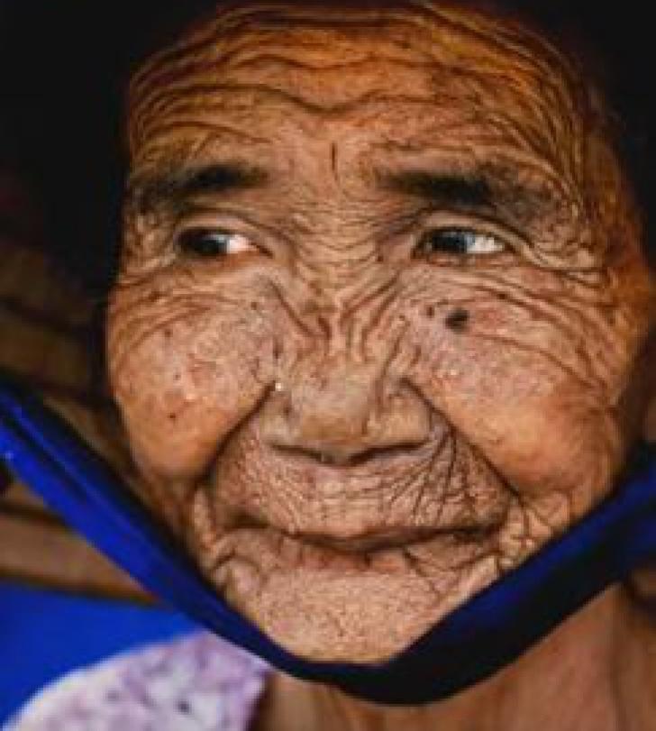 O bătrână de 100 de ani i-a rugat pe specialişti să o facă din nou tânără