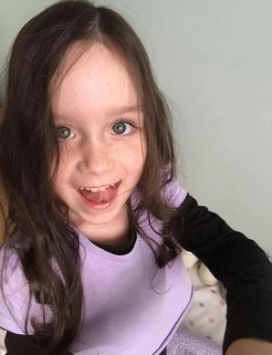 După chimioterapie, această fetiță a rămas cu o singură geană. Povestea ei e impresionantă